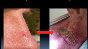 Zdjęcie po lewej przedstawia raka podstawnokomórkowego skóry, zmianę niezaawansowaną. Zdjęcie po prawej to zaawansowany rak podstawnokomórkowy skóry