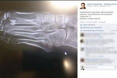 Justyna Kowalczyk ma złamaną stopę