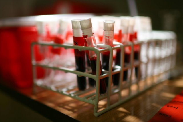Wystarczy próbka krwi, żeby sprawdzić postepy lecznia onkologicznego.