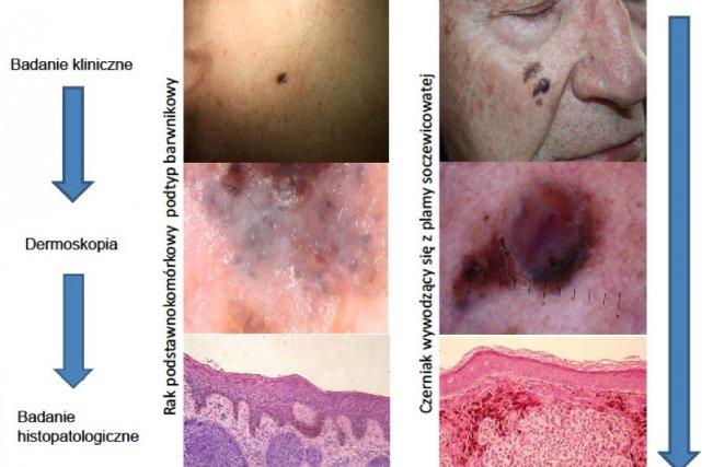 Nowotwory skóry – czerniak i rak podstawnokomórkowy skóry