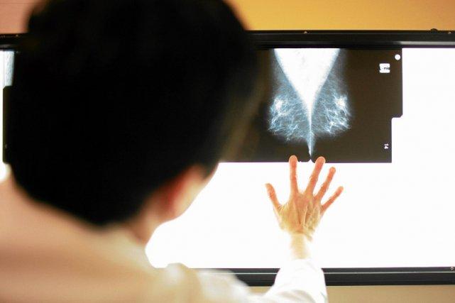 Mammografia nie odejdzie do lamusa.