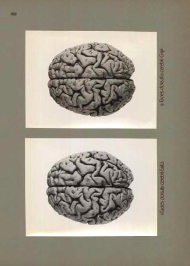 Mózg Józefa Piłsudskiego, opracował prof. Maksymilian Rose