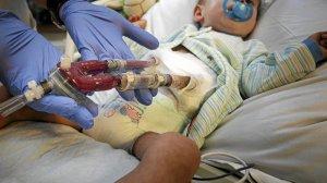 Dziecko czeka na przeszczep serca