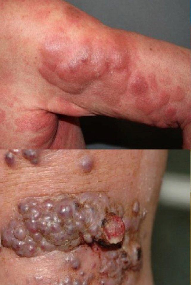 Nowotwory skóry